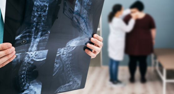 A doctor holds an x-ray showing scoliosis