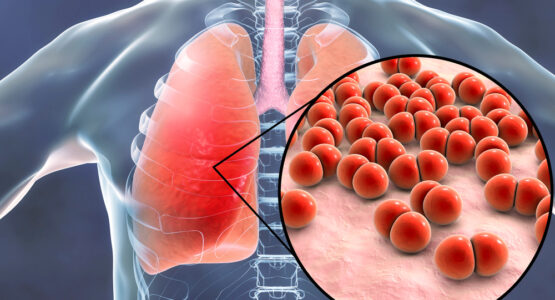 Various Disease affect parts of the lungs